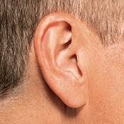 IIC hearing aids in Binghamton, NY